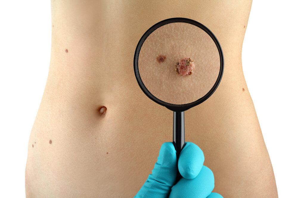 Chirurgie Tumeurs cutanées