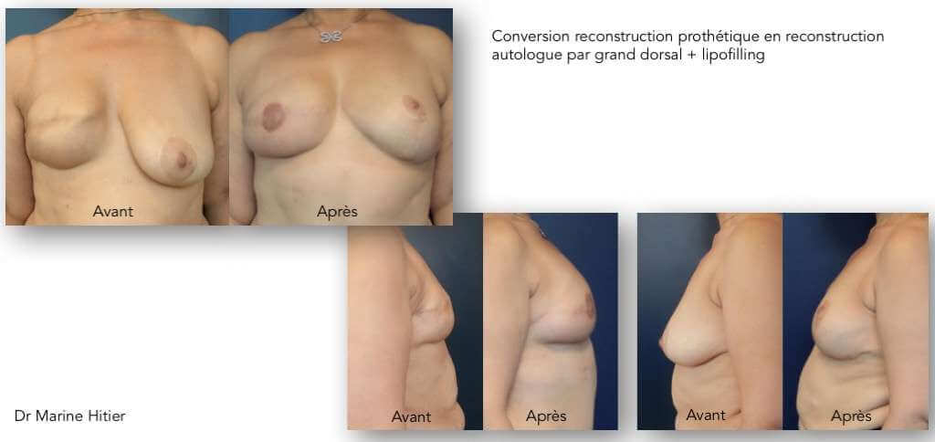 Reconstruction mammaire grand dorsal