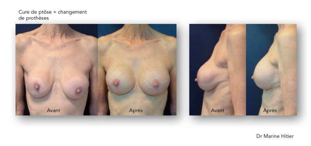 Ptôse implants mammaires