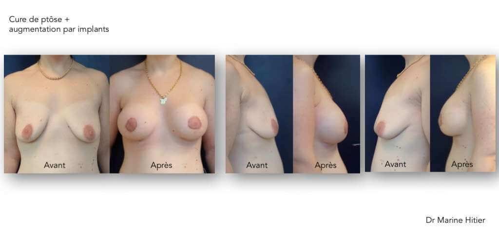 Ptôse + hypotrophie mammaire