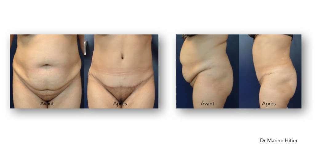 Dermolipectomie abdominale