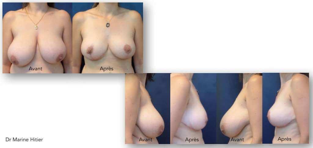 seins tombants et asymétriques